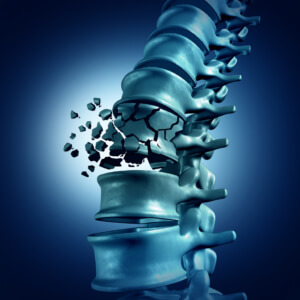 Chula Vista, California, Common Fractures Suffered in a Car Accident