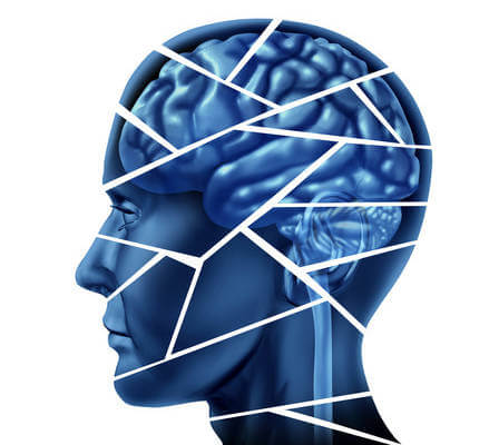 Who pays for traumatic brain injury treatment after a car accident in Chula Vista, CA?